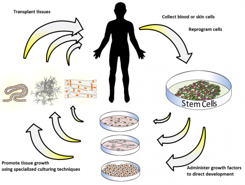 Global Regenerative Medicine Market Worth will grow to over $81